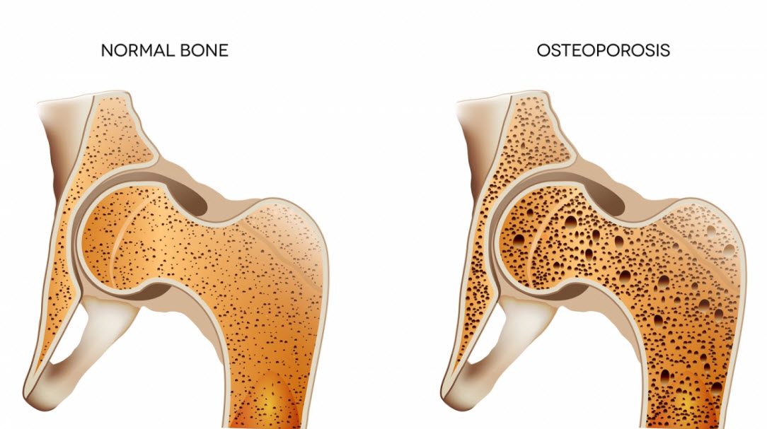 definition of osteoporosis Osteoporosis is a condition of decreased bone mass this leads to fragile bones which are at an increased risk for fractures in fact, it will take much less stress on an osteoporotic bone to cause it to.
